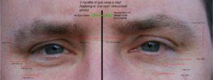 Natural under eye cream